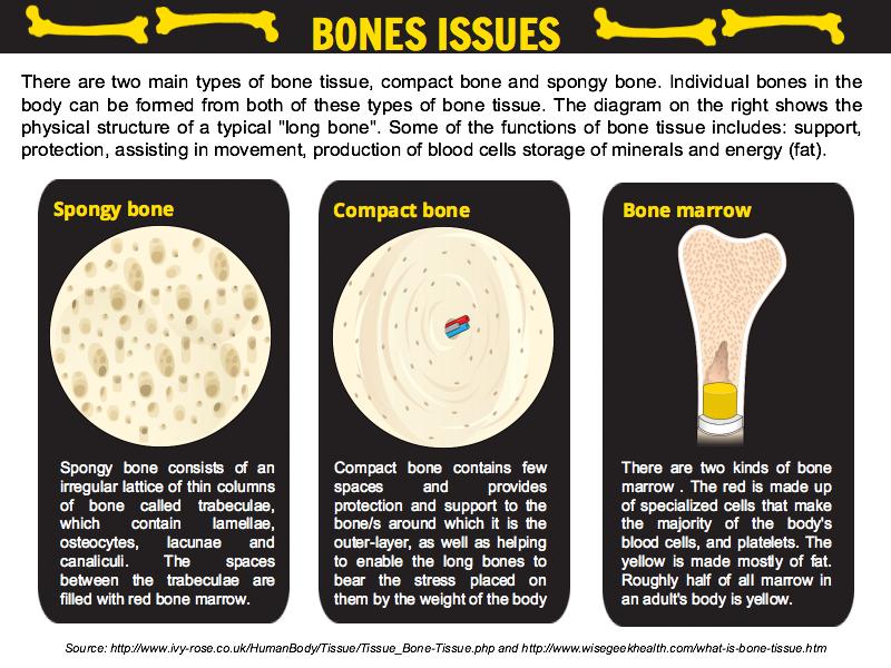 Bones issues